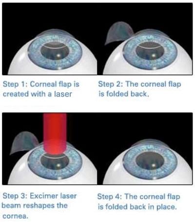 corneal_flap